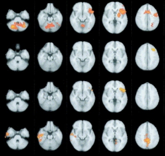 Modern fMRI scans can indicate the location of different brain functions